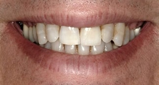 Before visiting Summerlin cosmetic dentist James B Polley DDS this patient had a crooked, discolored smile that was not impressive for his busy lifestyle.