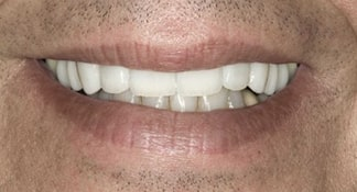 An after closeup of a Summerlin dental patient who received a more masculine, professional smile with the help of all-ceramic dental veneers and crowns.