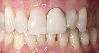 Before meeting with Summerlin cosmetic dentist James Polley, this patient was displeased with the color and wear on his front teeth.