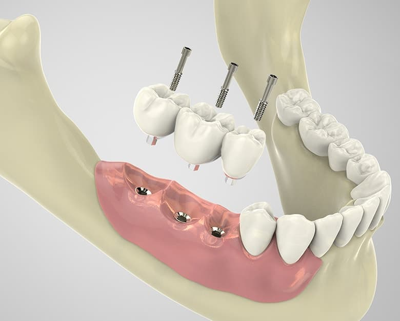 Can I Get Dental Implants If I Lost My Teeth To Gum Disease James