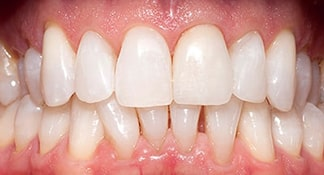 After the cosmetic dental procedures of teeth whitening this patient of Dr. Polley is now able to smile with confidence.