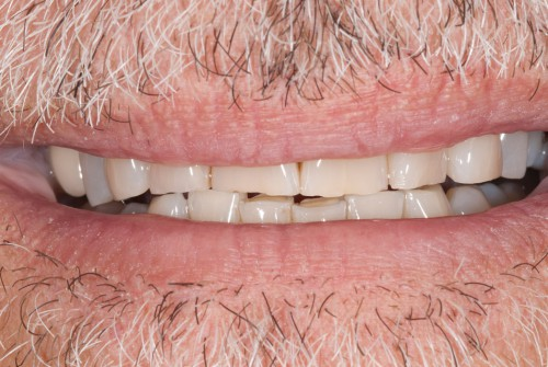 A closeup of a Summerlin cosmetic dental patient before meeting with Dr Polley wanted help with he worn down, chipped teeth