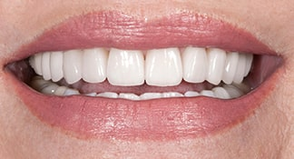 After having porcelain veneers this patient of Summerlin dentist Dr. Polley was able to give her a youthful smile.