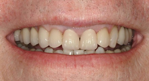 After having new dental veneers and crowns from Dr. Polley, this Summerlin dental patient was able to have a natural healthy look to his smile.