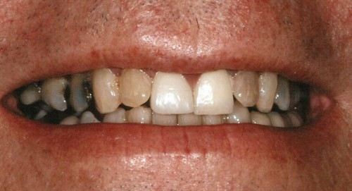 Before new dental crowns and veneers this patient of Summerlin Dentist Dr. Polley had issues with multicolored teeth.