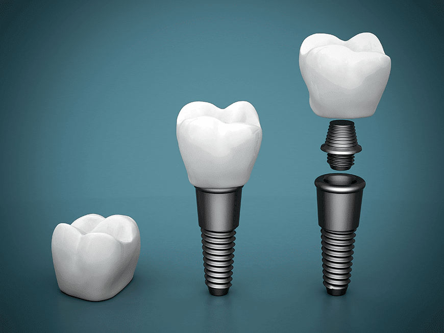 Super Carbon Protects | Las Vegas Dental Implants
