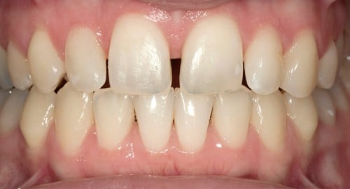 Unhappy with her teeth before contacting Dr. Polley, this Summerlin patient had rotated teeth and large gaps that made her feel self-conscious