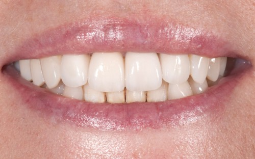 After Dr. Polley was able to craft beautiful all-ceramic crowns for this female patient she felt confident to smile with a healthy, natural look