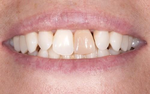 Before consulting with cosmetic dentist Dr. Polley this Summerlin patient didn't want to smile due to her dark front tooth.