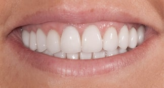 After having Summerlin cosmetic dentist James B Polley craft a brand new smile for her, this female patient can smile broadly.