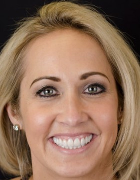 After meeting Dr. Polley in his Summerlin dental office, this female dental patient was able to smile with self confidence with the help of a cosmetic smile makeover