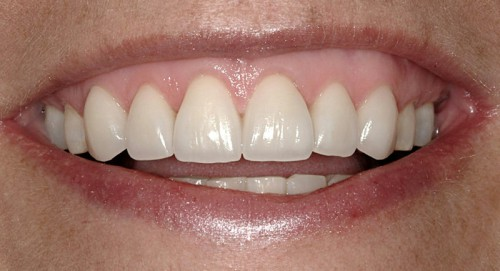 After using orthodontics to move this dental patients front teeth to correct her bite, Summerlin dentist Dr. Polley worked to create better gum and tooth balance with all-ceramic veneers.