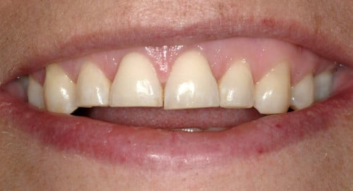 Before meeting Summerlin dentist Dr. James Polley this female patient was conscious about her worn down smile.