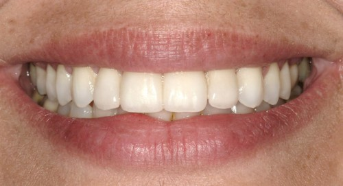 After Orthodontics by Summerlin dentist Dr. Polley along with dental veneers this female patient was able to transform her worn down, chipped teeth.