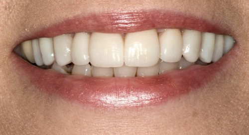 After restoring her smile with all-ceramic materials, this Summerlin dental patient of Dr. Polley was able to have a complete smile makeover