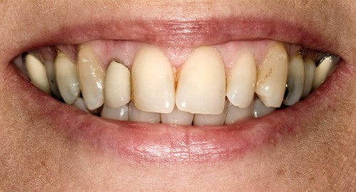 Before contacting Dr. Polley's dental office this Summerlin patient had wear on her teeth due to an imbalanced bite.