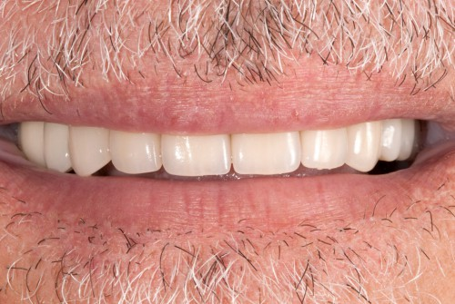 After years of worn, chipped front teeth this dental patient of Dr. Polley was able to smile again with all-ceramic crowns, restoring his teeth.
