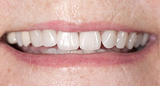 After years of brown front teeth, this cosmetic dental patient of Dr. Polley was crafted two dental crowns, giving her a smile her grand kids were proud of.