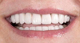 After living with discolored teeth this patient received ceramic restorations by Summerlin dentist Dr. Polley to give her a confident, new smile.