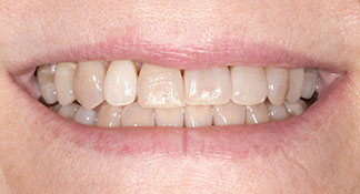 Brown, discolored teeth before meeting with dentist Dr. Polley was this patients' top priority to have fixed