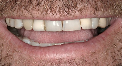 Before coming to Summerlin dentist Dr. Polley this male patient wanted a smile he could be proud of. With mismatched colors he was unhappy with the look