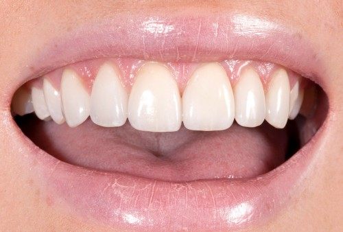 After performing plastic gum surgery on her upper front teeth, Dr. Polley was able to craft all-ceramic veneers to close the gaps in this patients smile.
