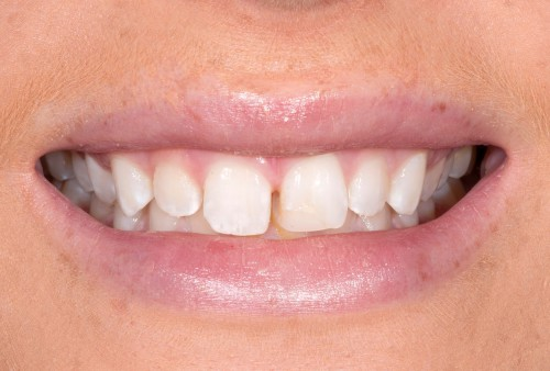 Before contacting dentist Dr. Polley, this Summerlin patient was unhappy with the spaces between her teeth.