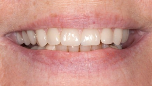After completing All-on-4 dental implants, Dr. Polley was able to place crowns, giving her a youthful looking smile she could love.