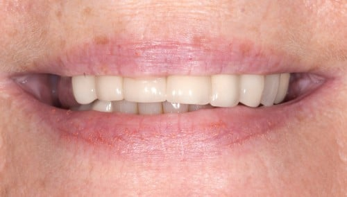 Before a visit with Summerlin cosmetic dentist Dr. Polley, this female patient had extensive tooth decay under old dental crowns.