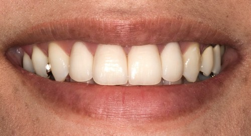After Dr. Polley crafted four high strength all-ceramic crowns this Summerlin dental patient was able to have a beautiful, natural smile.