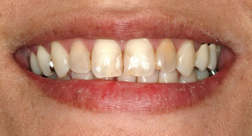 Before coming to meet Summerlin dentist Dr. Polley, this female patient has weak teeth that were discolored.