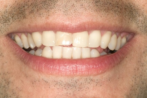 Before image of a dental patient of Dr. Polley who was concerned with his chipped front teeth.