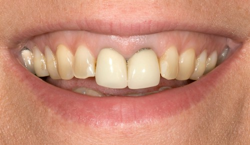 Before consulting with dentist Dr. Polley, this Summerlin patient was unhappy with her smile, especially her two front teeth that were discolored.