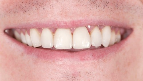 After dental restorations, James B Polley was able to show off his beautiful smile.