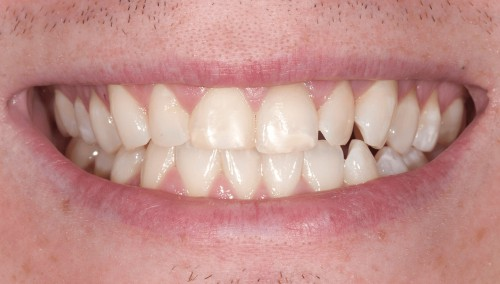 Before consulting with Summerlin dentist Dr. Polley this man didn't like his smile.