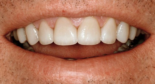 After a bite adjustment and ceramic dental veneers, this patient of Summerlin dentist Dr. Polley was able to have a stunning new smile.
