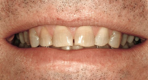 Before meeting with cosmetic dentist Dr. Polley in his Summerlin office this patient wanted help with is stained teeth to better match his outgoing personality.