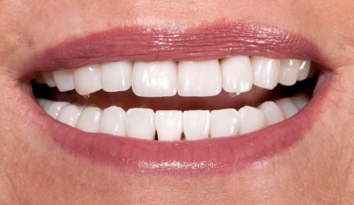After using bone-grafting, a dental implant and all-ceramic crowns this Summerlin dental patient of Dr. Polley was able to regain her smile after a terrible bike accident.