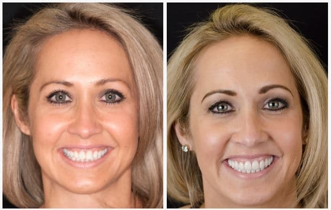 Candace, a patient of James B. Polley, DDS, was tired of her smile and wanted more confidence. A full cosmetic treatment was completed on both her upper and lower teeth.