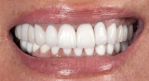Close Up After Treatment