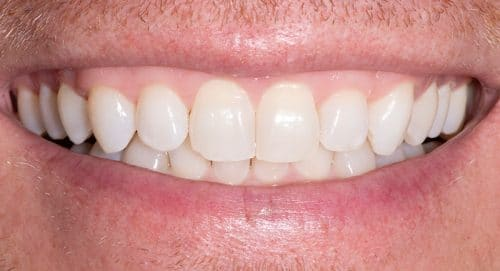 Close Up Before Treatment