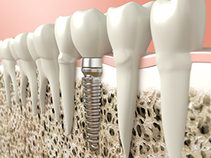 Proper Care for Dental Implants