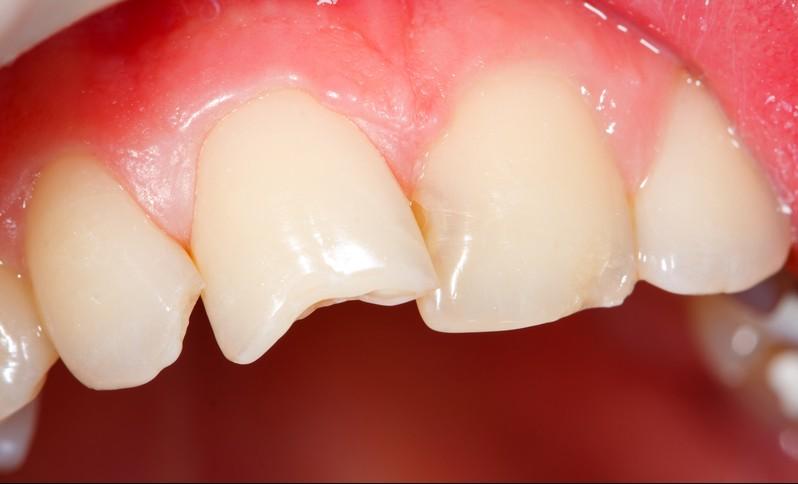 Как будут делать отколотый зуб