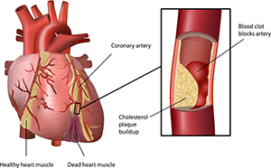 Gum and Heart Disease Causal Link